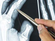 変形性膝関節症って治るの?