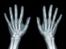 骨粗鬆症の骨代謝マーカーとは?