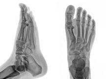 モートン病について:足のゆびのしびれ